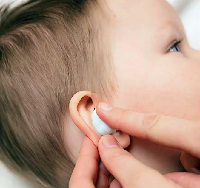 Как правильно чистить уши человеку в домашних условиях: средство от серы, палочки и капли, что будет если не чистить,