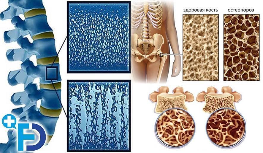Остеопороз у детей и подростков: причины, симптомы, диагностика и лечение