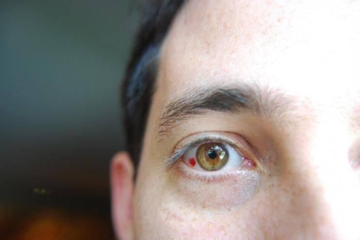 Лопнул сосуд в глазу: капли, которые помогут избавится от симптома, какие средства помогут в домашних условиях, что делать при травме глаза