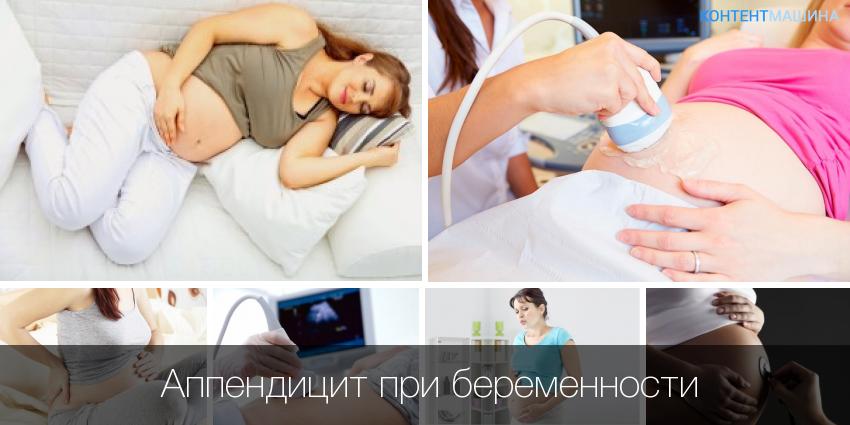 В чрезвычайном положении. аппендицит во время беременности. воспаление аппендицита во время беременности