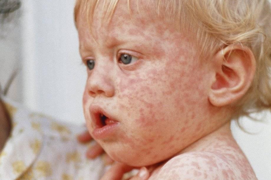 Вирусная экзема у детей и взрослых: фото, признаки, как лечить и предупредить | fr-dc.ru