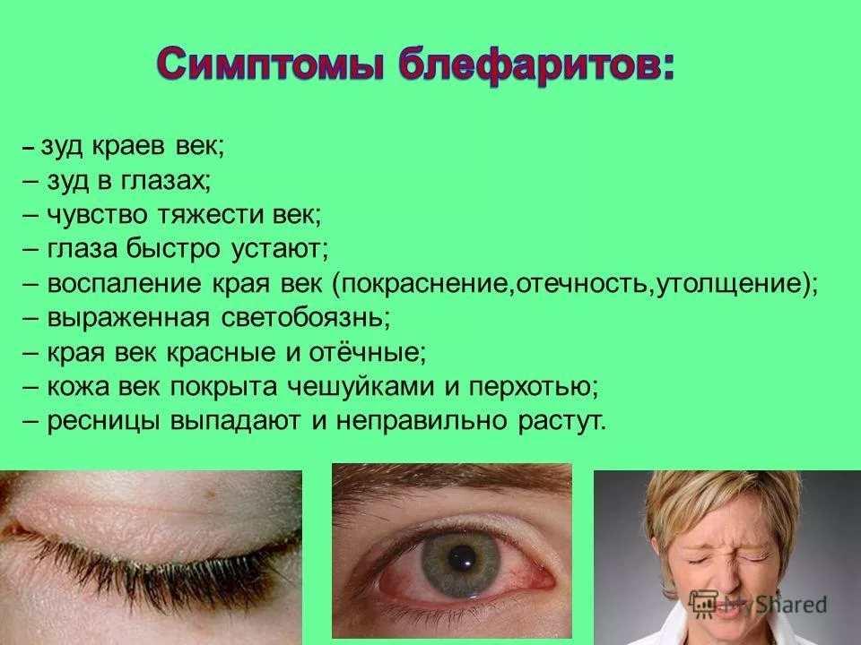 Болят глаза у ребенка: каковы причины и что делать?