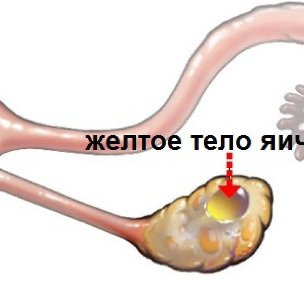 Персистенция желтого тела справа: ???? вопросы гинекологии и советы по лечению