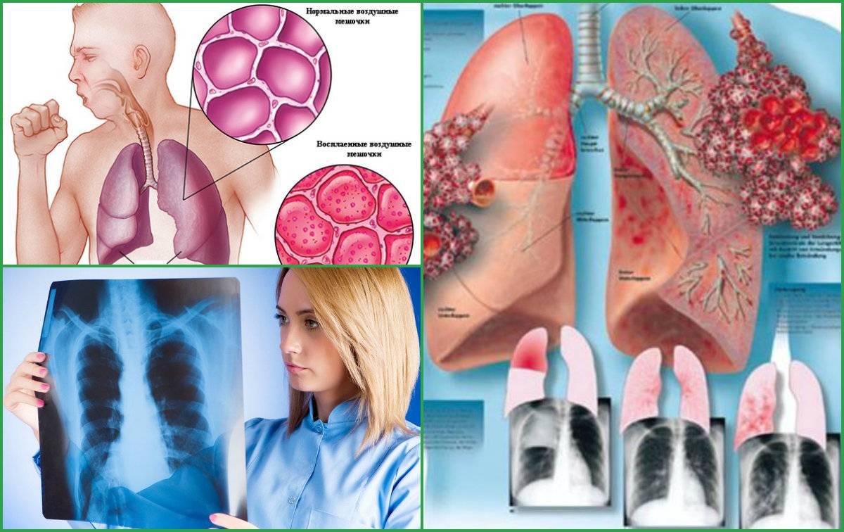 Инфекционный артрит (инфекционно-аллергический): симптомы и лечение