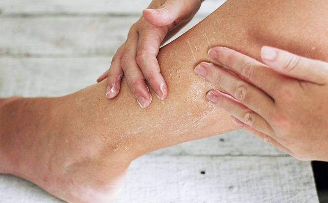 Сухая кожа рук и ног у ребенка: почему сухая кожа на ножках у грудничка - причины у новорожденного малыша