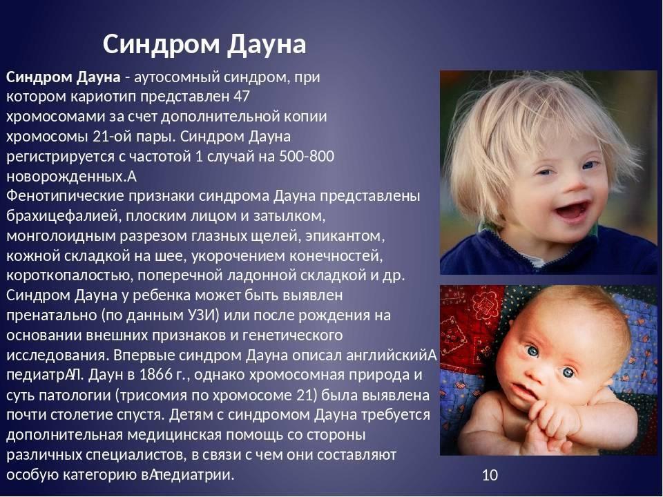 Дети с синдромом Дауна: причины, признаки, симптомы у новорожденных