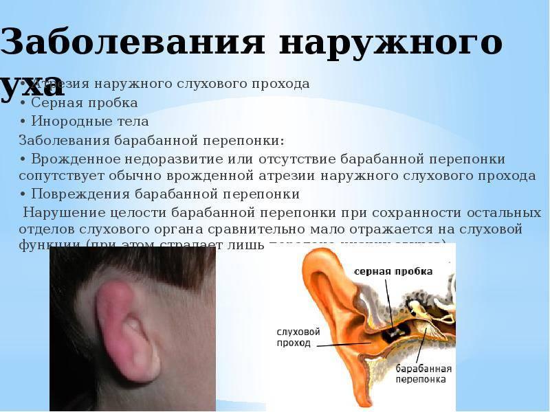 Что делать если болит ухо после бассейна?
