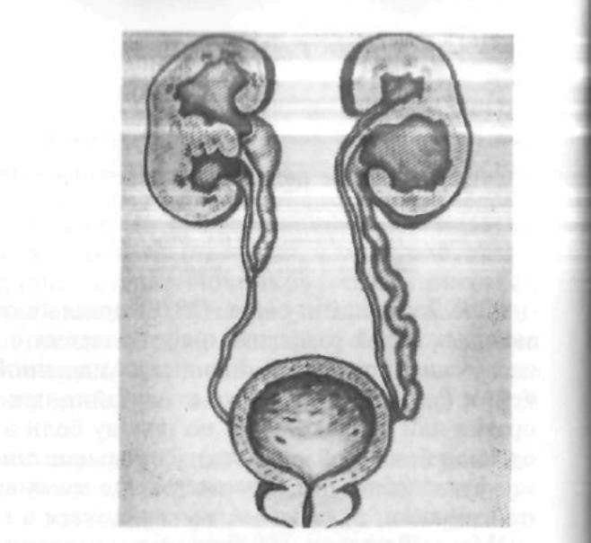 Врожденные болезни почек и других органов мочевой системы у детей . врожденные заболевания почек у детей. почему так происходит?