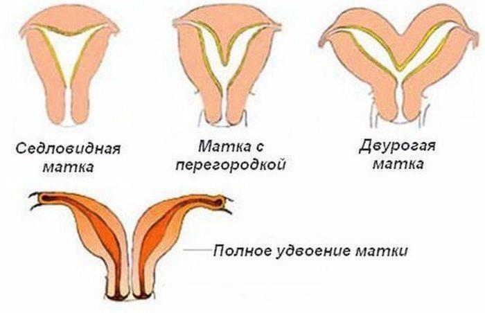 Седловидная матка: беременность, форма матки, что это значит