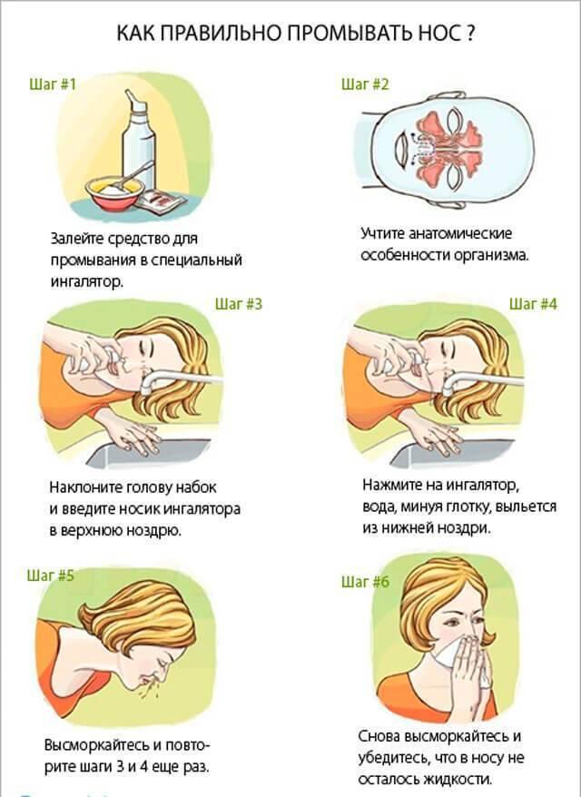 Аминокапроновая кислота - инструкция по применению. раствор аминокапроновой кислоты в нос и для ингаляций