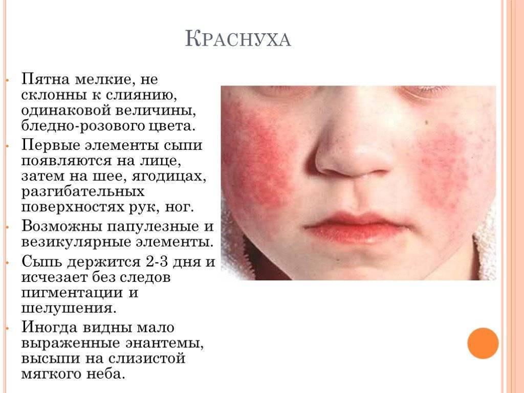 Симптомы вирусной и внезапной экзантемы у детей: фото сыпи и принципы лечения кожной инфекции. шестая болезнь или внезапная экзантема!!! вирусная экзантема лечение