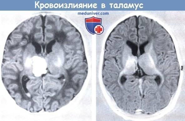 Чем опасно кровоизлияние в мозг у новорожденного