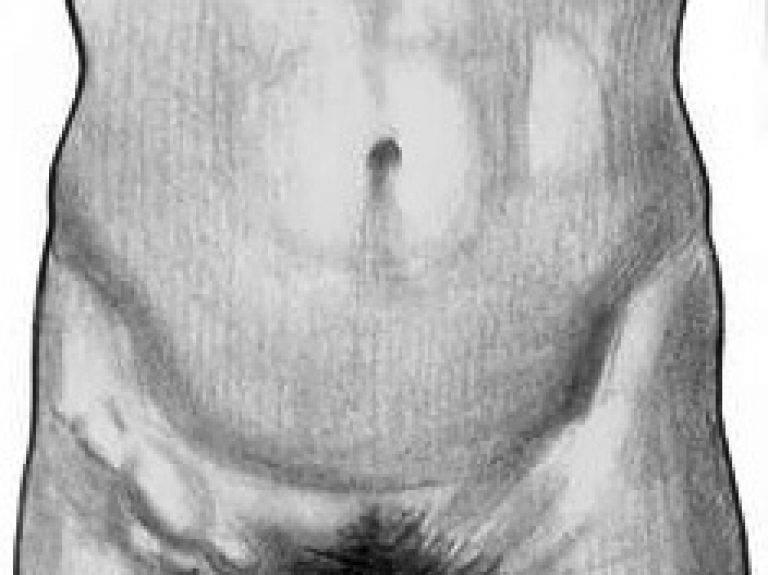 Увеличены лимфоузлы в паху у ребенка. каковы причины? как лечить