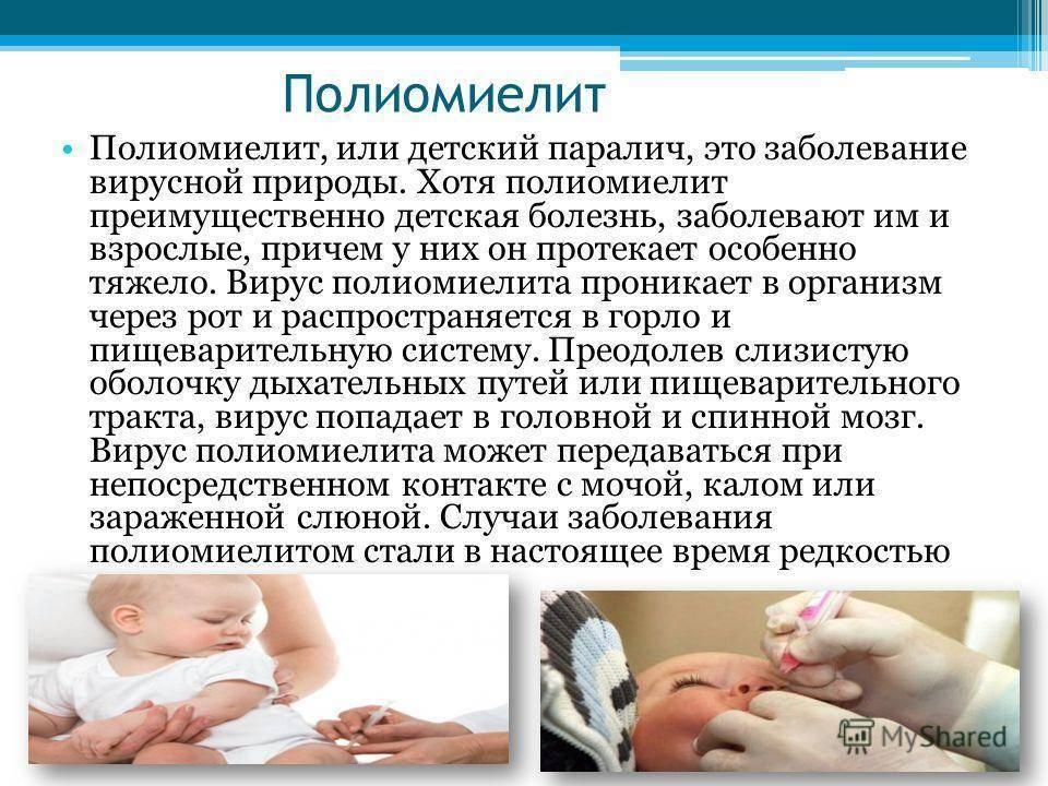 Симптомы и признаки полиомиелита у детей, методы диагностики, лечения и профилактики болезни. полимиелит у ребенка
