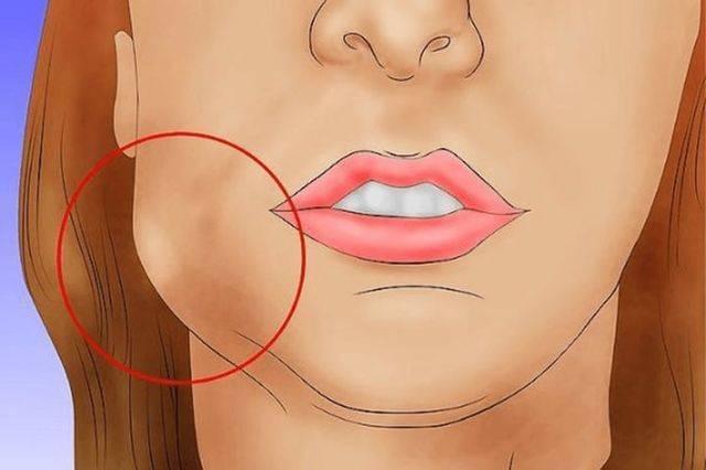 Опухла щека, но зуб не болит: причины отека щеки, что делать и как снять опухоль в домашних условиях