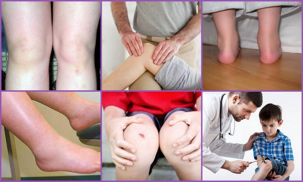 Реактивный артрит у детей - симптомы и лечение