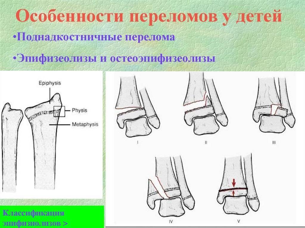 Перелом бедра у ребёнка: клиническая картина травмы со смещением, правила предотвращения последствий, особенности лечения   статья от врача