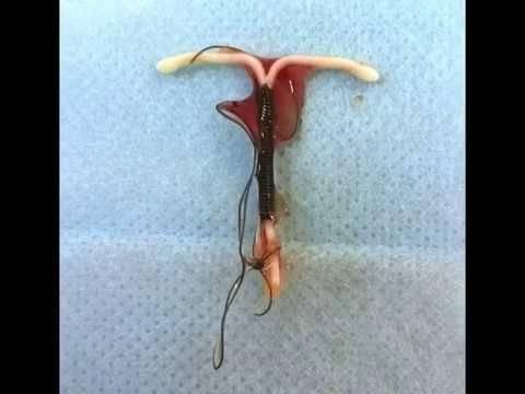 Спираль вросла в матку последствия. показания к удалению внутриматочной спирали
