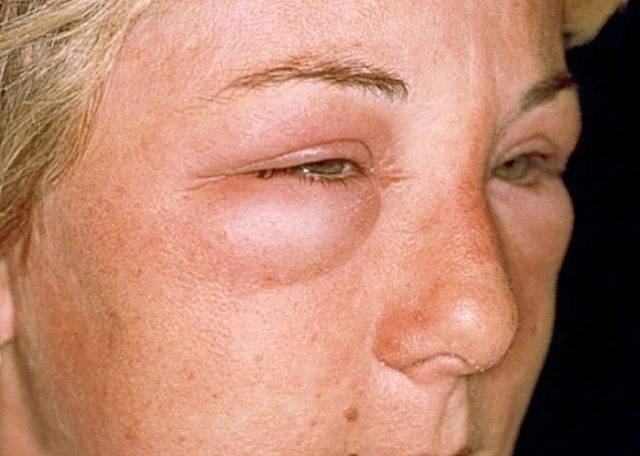 Аллергия на глазах: фото, симптомы на веках, вокруг глаз, отек при аллергии под глазами