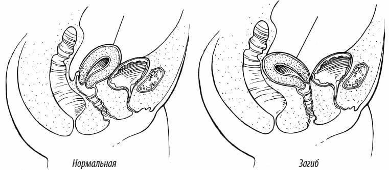 Что означает седловидная матка и возможна ли беременность при ней
