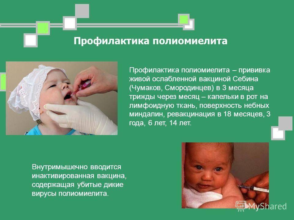 Как передается полиомиелит: что нужно знать, чтобы не заразиться