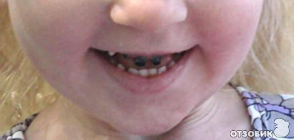 Ребенок ударился зубом и он шатается - педиатор