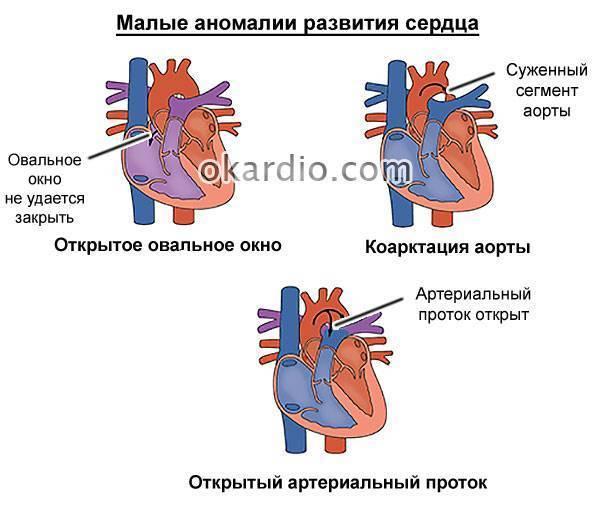 Систолический шум в сердце у ребенка — сердце