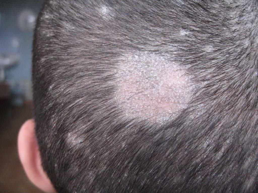Стригущий лишай у ребенка на голове: чем быстро вылечить, терапия народными средствами