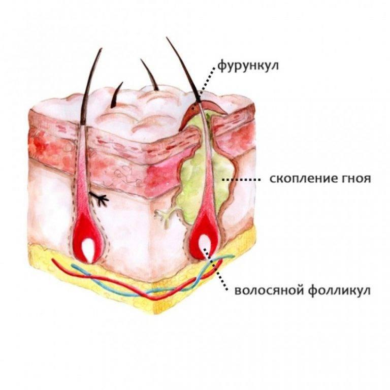 Чирей на попе (ягодицах): фото фурункула, лечение
