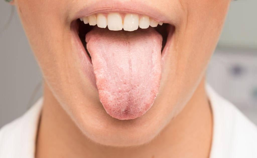 Сухость во рту у ребенка: причины сухости во рту ночью и днем, если постоянная жажда и сушит язык