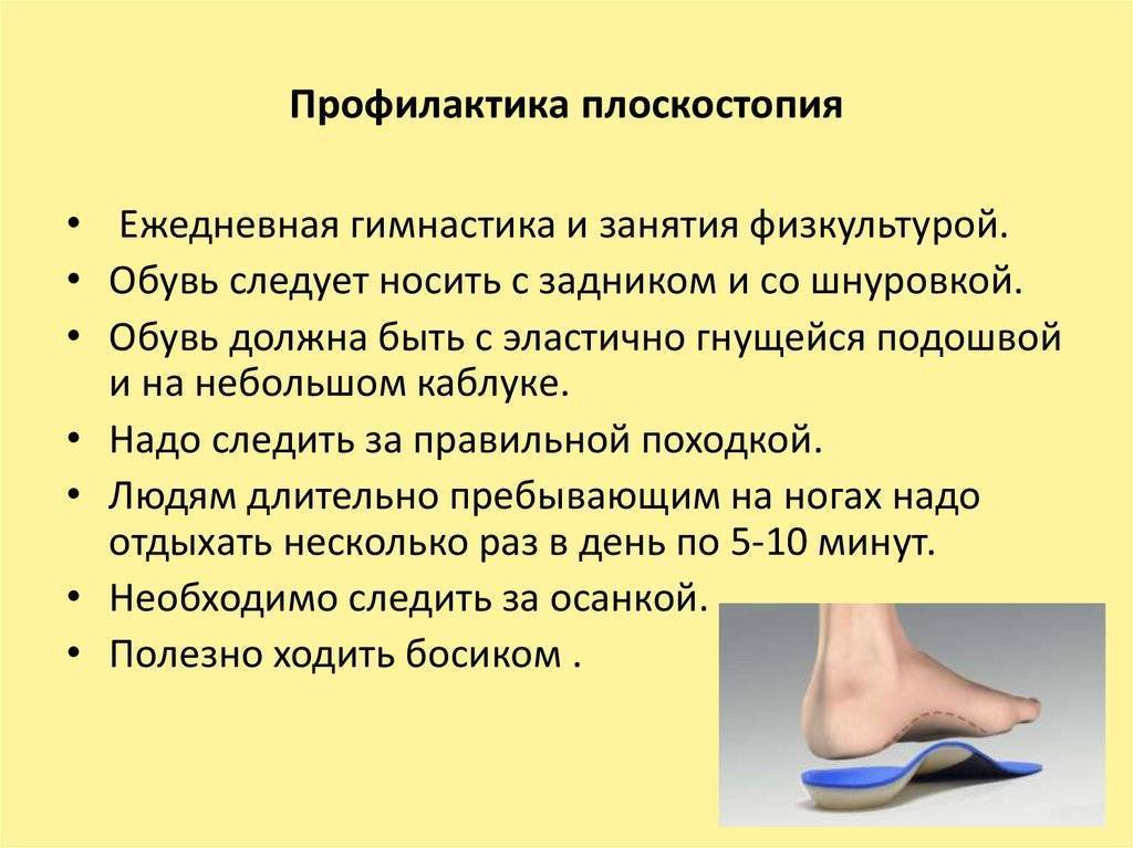 Лфк при плоскостопии у детей: упражнения в картинках