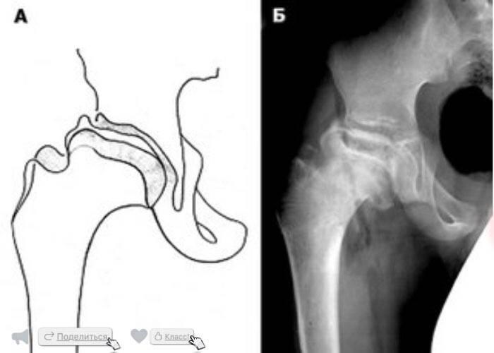 Болезнь пертеса тазобедренного сустава у взрослых | лечение суставов
