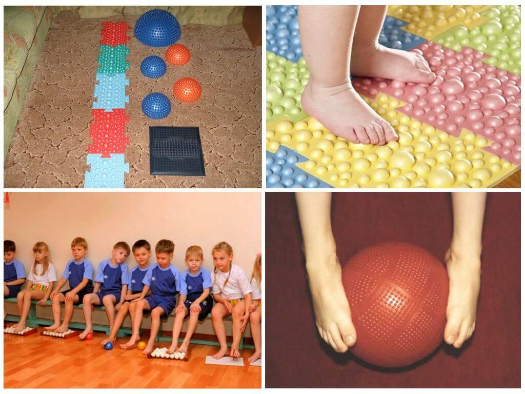 Комплекс упражнений при плоскостопии у детей