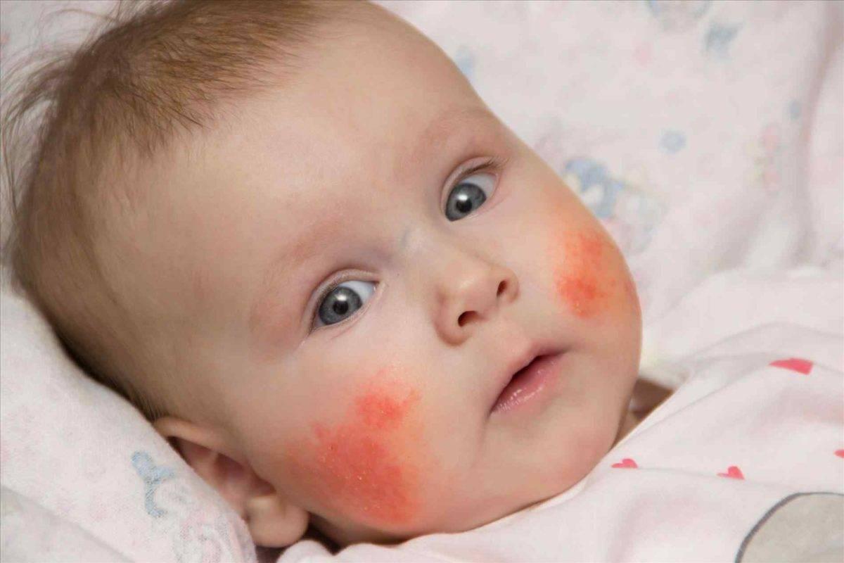 Аллергический дерматит у детей – симптомы, лечение, мазь от аллергического дерматита, диета при аллергическом дерматите