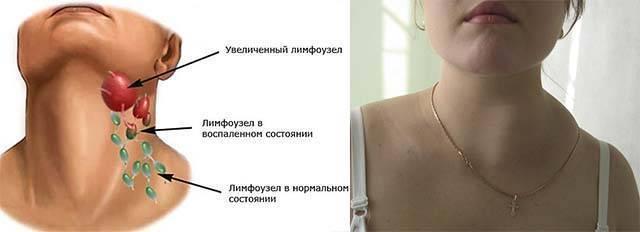 Воспаление лимфоузлов на шее у ребенка: причины и симптомы. методы лечения воспаления лимфоузлов на шее у ребенка - автор екатерина данилова - журнал женское мнение