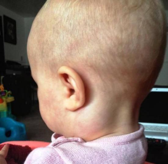 У ребенка шишка за ухом – что это?