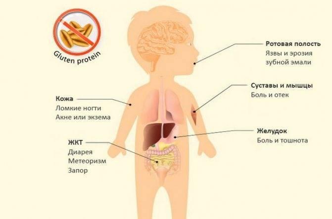 Симптомы и признаки аллергии на глютен у ребенка