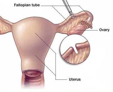 Стерилизация женщины, перевязка маточных труб: как происходит, как делают, плюсы и минусы, последствия