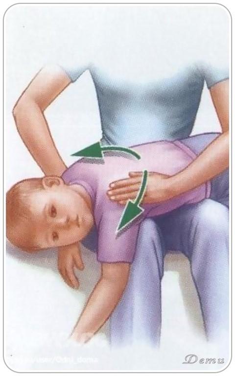 Как вывести мокроту у ребенка из бронхов: как помочь откашлять мокроту грудничку, основные методы