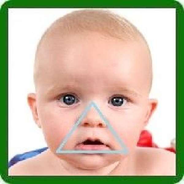 Синеет носогубный треугольник у ребенка 5 месяцев. почему у грудничка синеет носогубный треугольник: причины цианоза и коррекция состояния новорожденного ребенка