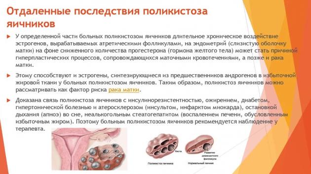 Киста желтого тела яичника: симптомы и лечение, причины возникновения