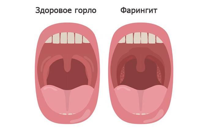 Красное горло у ребенка - простудные заболевания