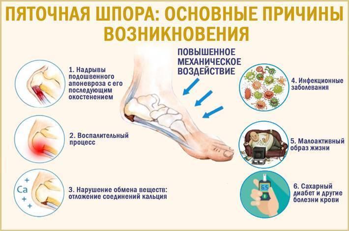 Болит пятка у ребенка, если на нее наступать — причины и способы лечения - wikidochelp.ru