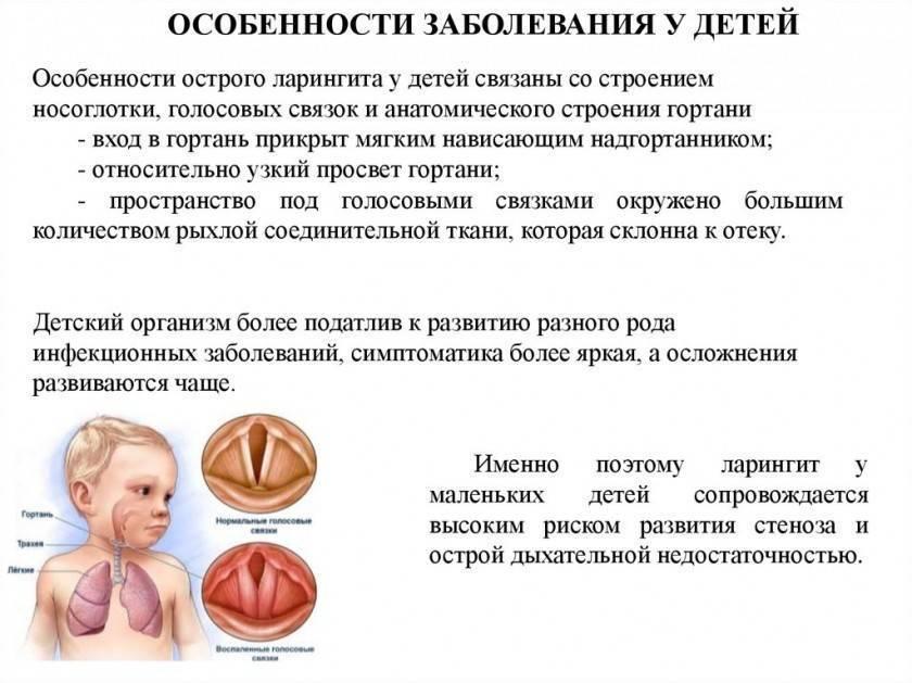 Лечение ларингита у детей препараты - народные средства