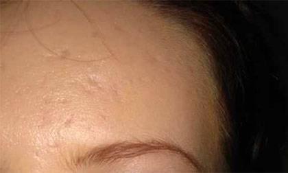 Как убрать шрам от герпеса?