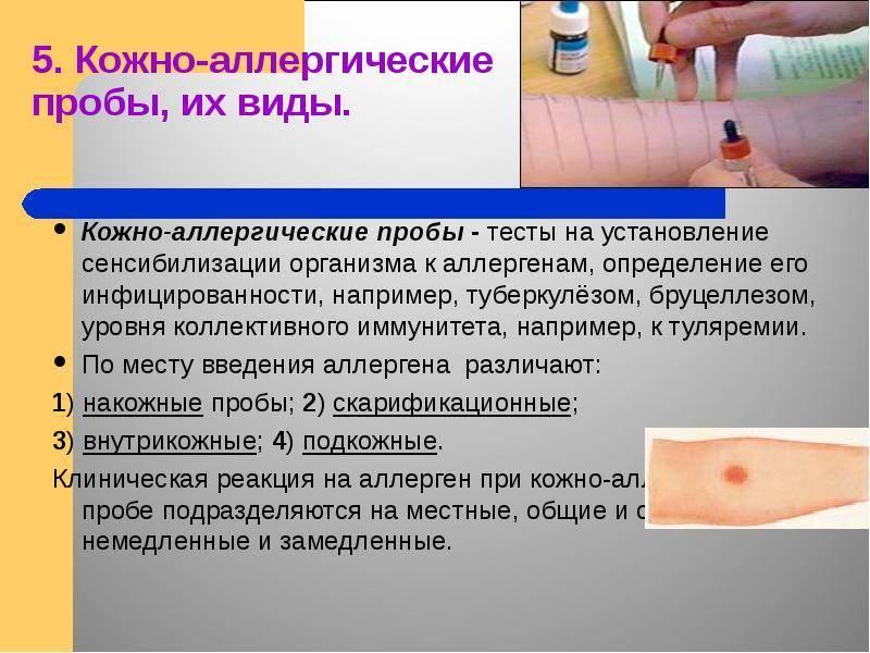 Пробы на аллергию — как делают, виды, специфика