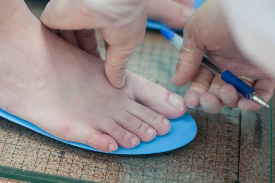 Детские ортопедические стельки. как подобрать правильно