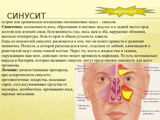 Синусит: симптомы и лечение у детей, что такое острый и хронический синусит