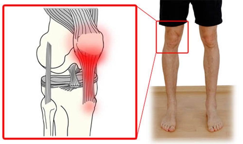 Боль в коленях при приседании и вставании: причины, лечение, профилактика