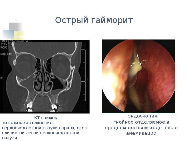 Лечение хронического синусита у ребенка - лечение